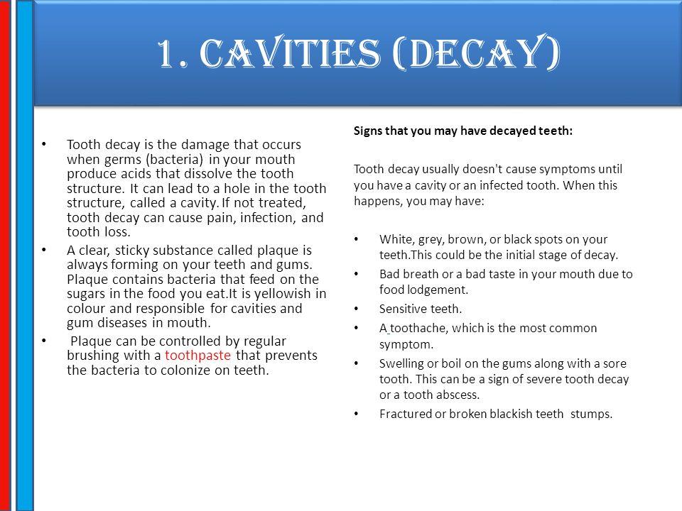 1. CAVITIES (Decay)