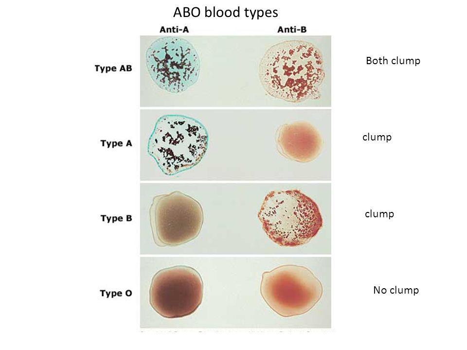 ABO blood types Both clump clump clump No clump
