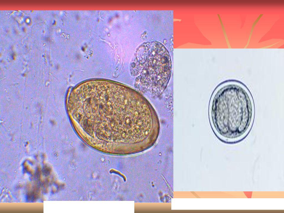 Fasciola hepatica egg Dicrocoelium dendriticum egg