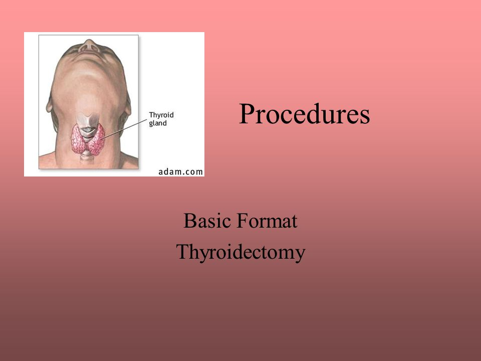 Basic Format Thyroidectomy