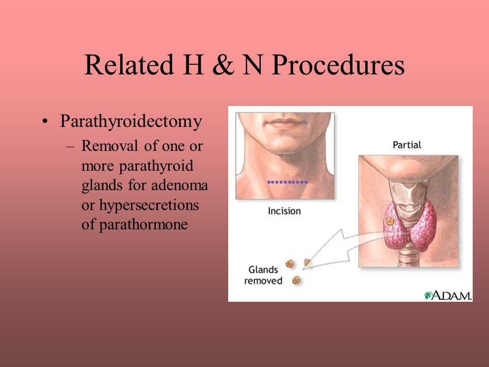 Related H & N Procedures