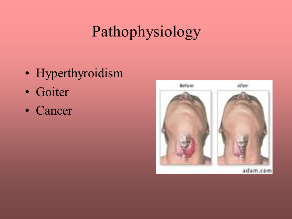Pathophysiology Hyperthyroidism Goiter Cancer