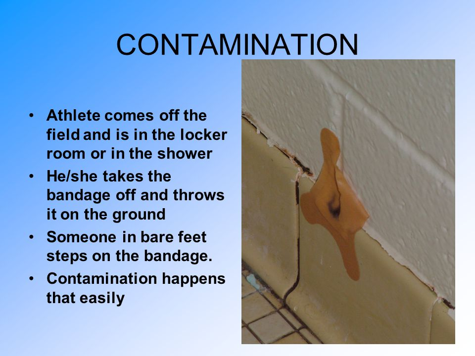 CONTAMINATION Athlete comes off the field and is in the locker room or in the shower. He/she takes the bandage off and throws it on the ground.