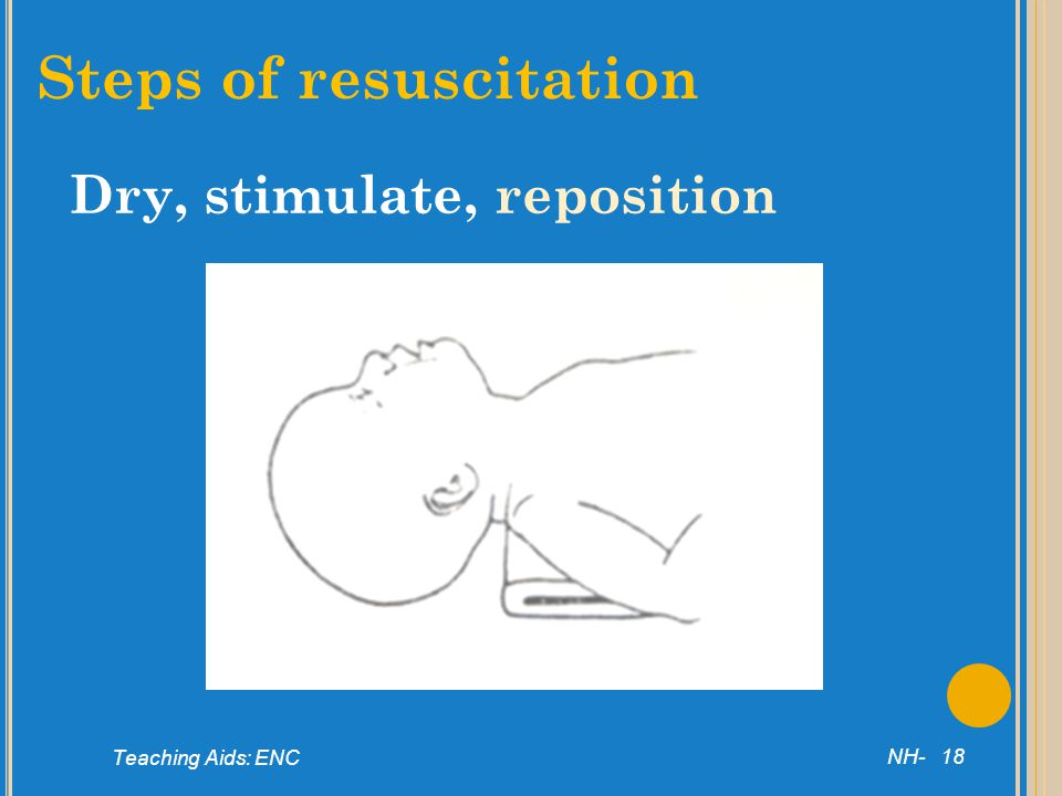 Steps of resuscitation