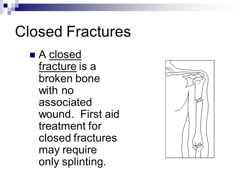 Closed Fractures A closed fracture is a broken bone with no associated wound.