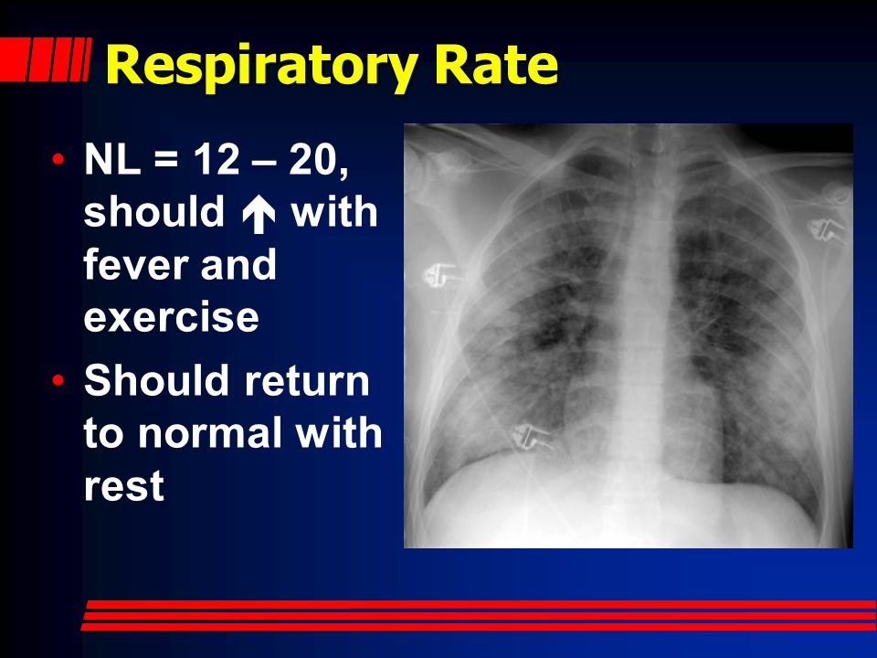 Respiratory Rate NL = 12 – 20, should  with fever and exercise