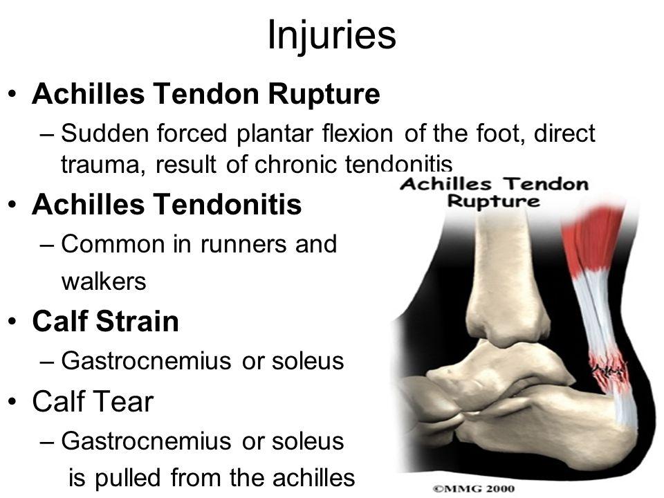 Injuries Achilles Tendon Rupture Achilles Tendonitis Calf Strain