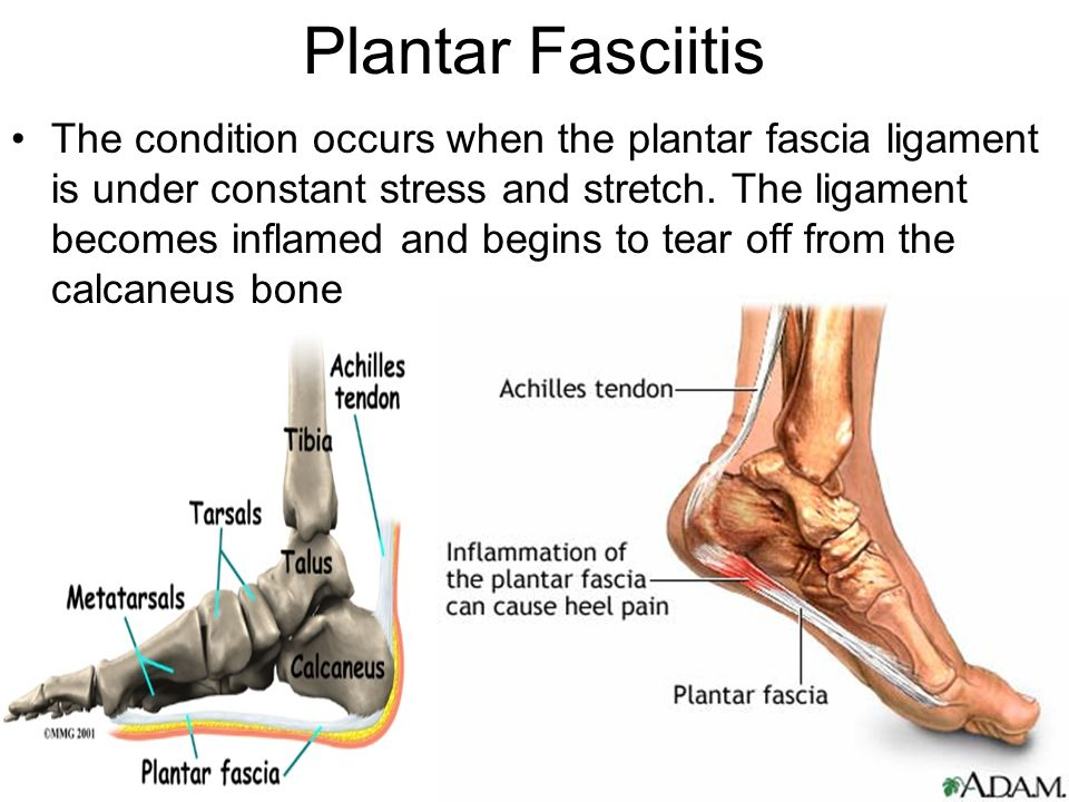 Plantar Fasciitis Foot Limbs Anatomy Scribd 4621468 - pacte-contre ...