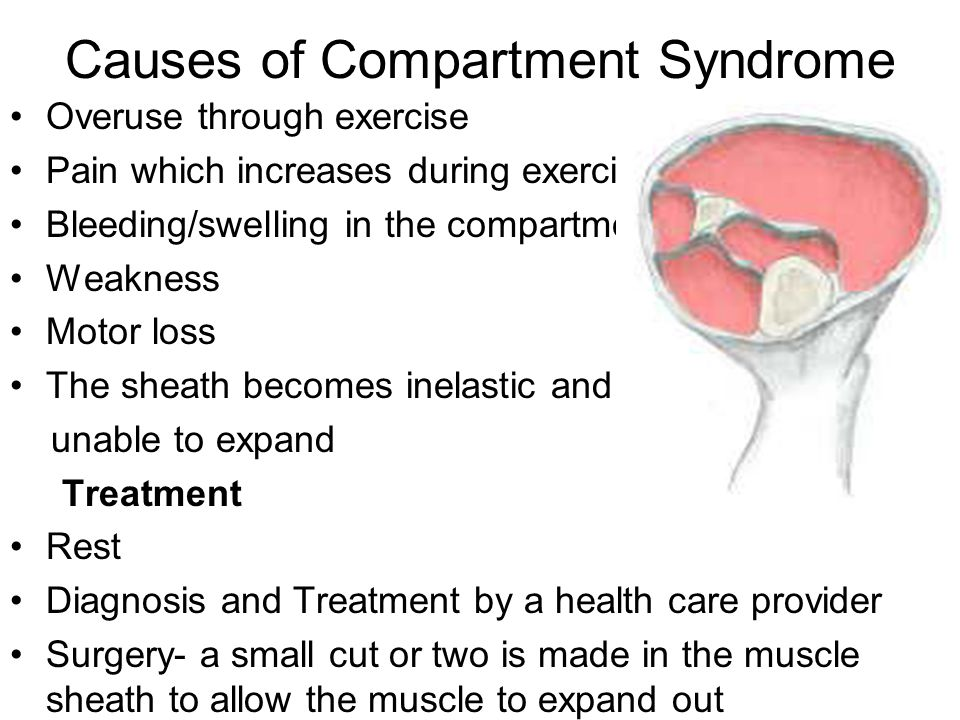 Causes of Compartment Syndrome