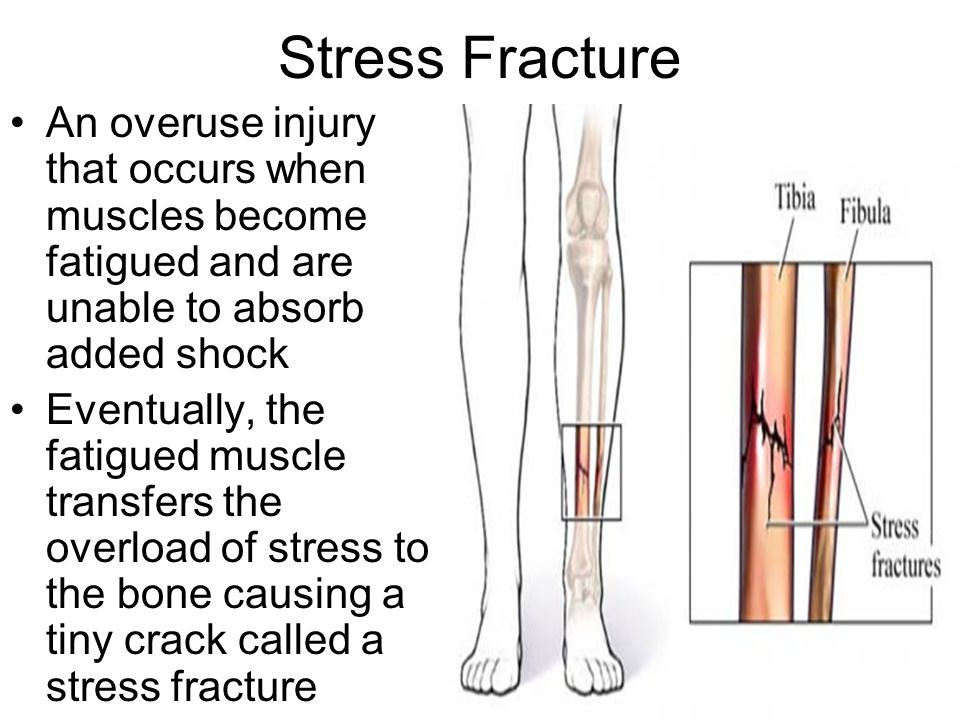 Stress Fracture An overuse injury that occurs when muscles become fatigued and are unable to absorb added shock.