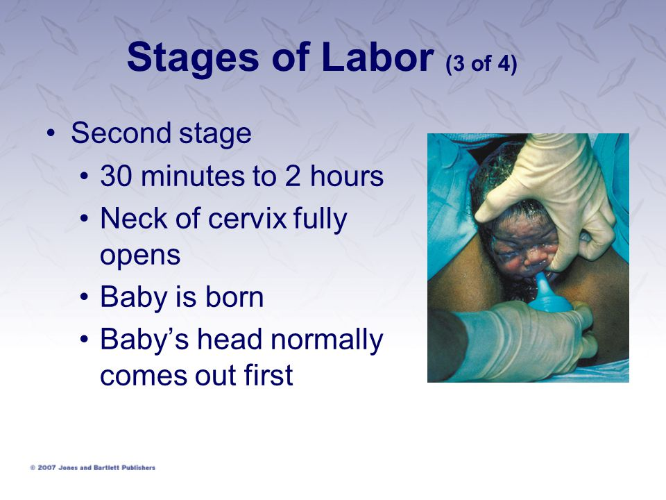 Stages of Labor (3 of 4) Second stage 30 minutes to 2 hours