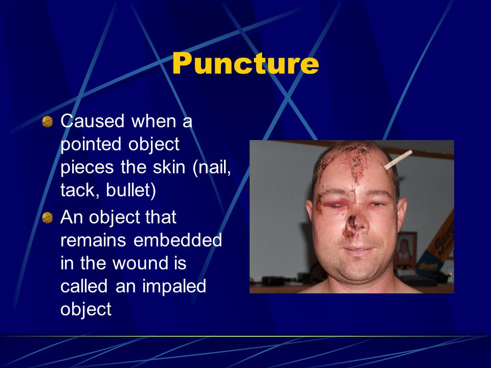 Puncture Caused when a pointed object pieces the skin (nail, tack, bullet) An object that remains embedded in the wound is called an impaled object.