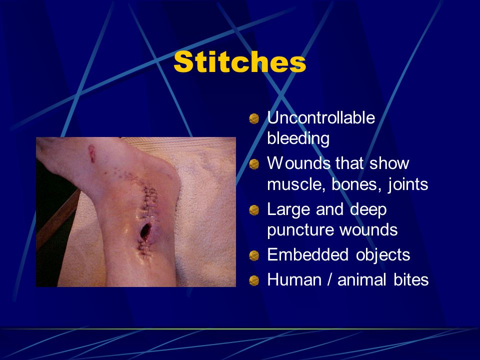 Stitches Uncontrollable bleeding
