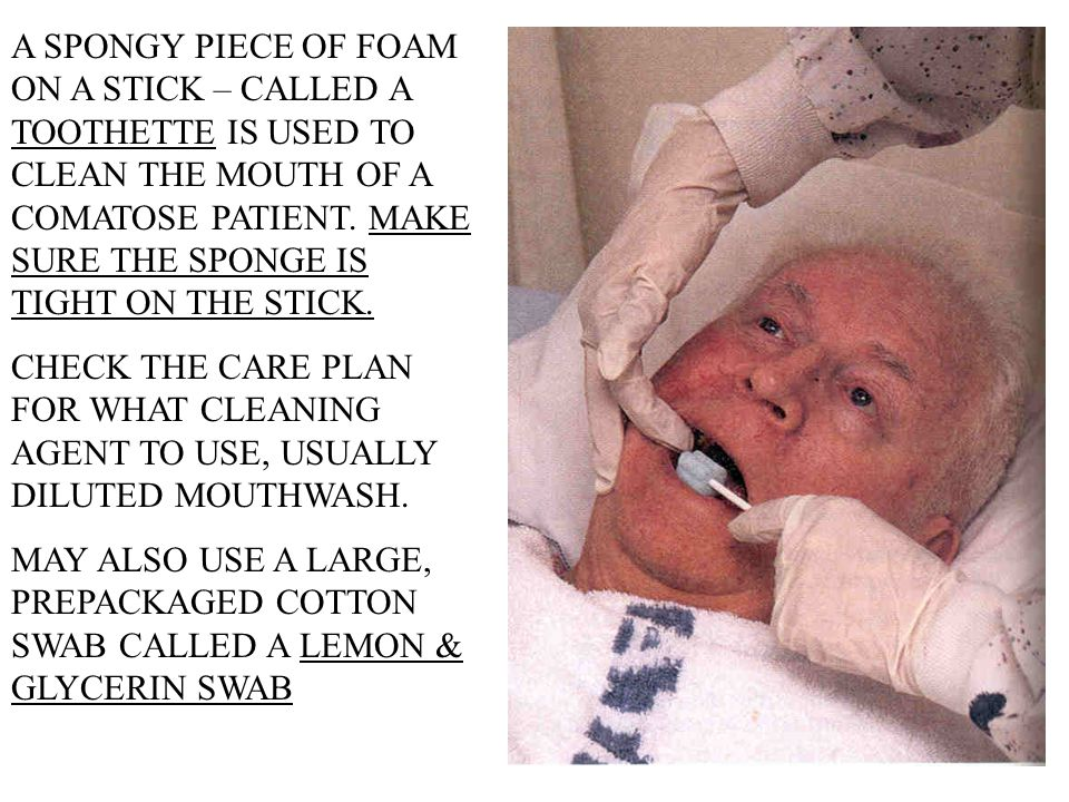 A SPONGY PIECE OF FOAM ON A STICK – CALLED A TOOTHETTE IS USED TO CLEAN THE MOUTH OF A COMATOSE PATIENT. MAKE SURE THE SPONGE IS TIGHT ON THE STICK.