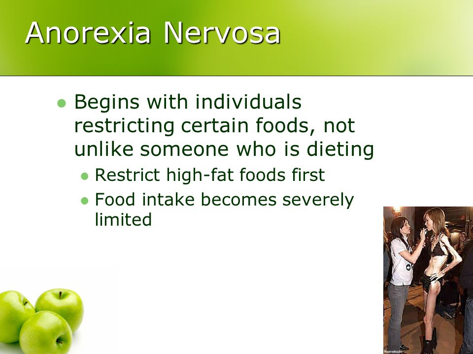 Anorexia Nervosa Begins with individuals restricting certain foods, not unlike someone who is dieting.