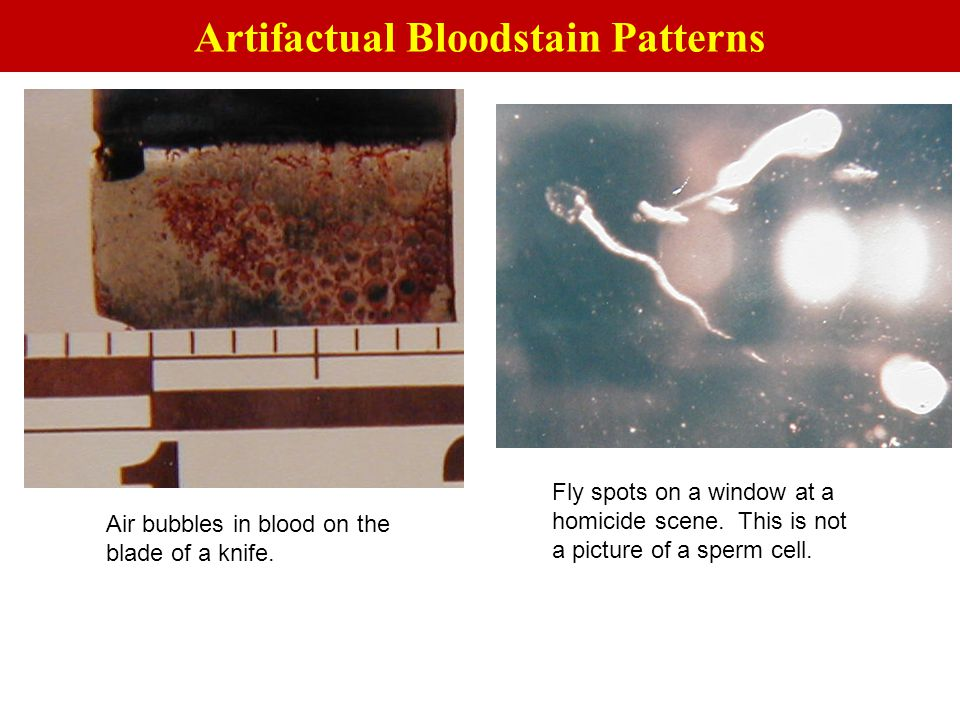 Artifactual Bloodstain Patterns