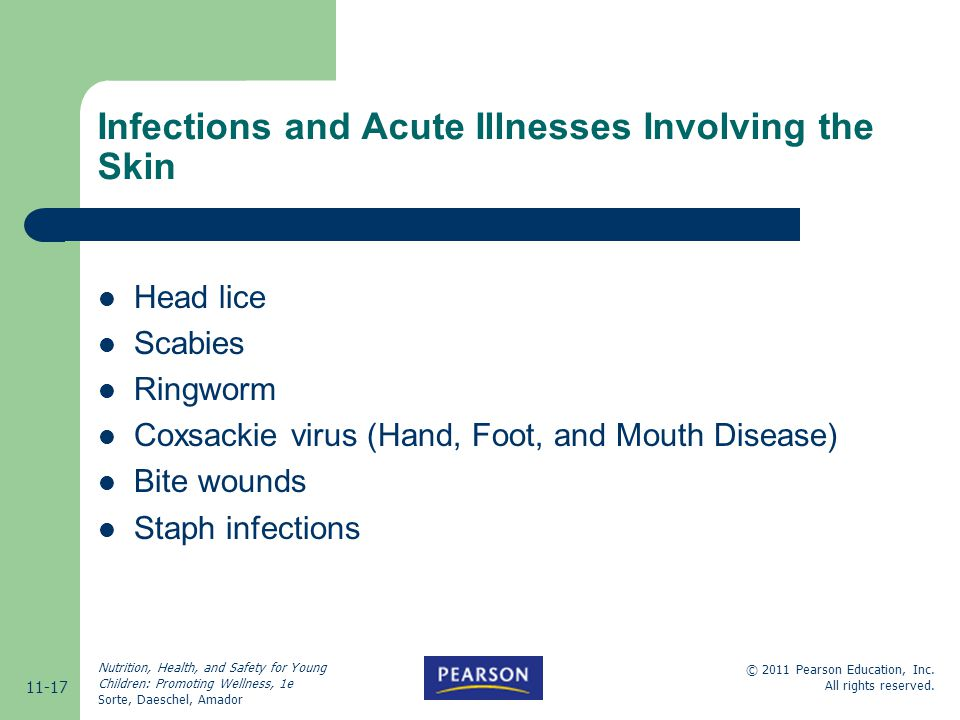 Infections and Acute Illnesses Involving the Skin