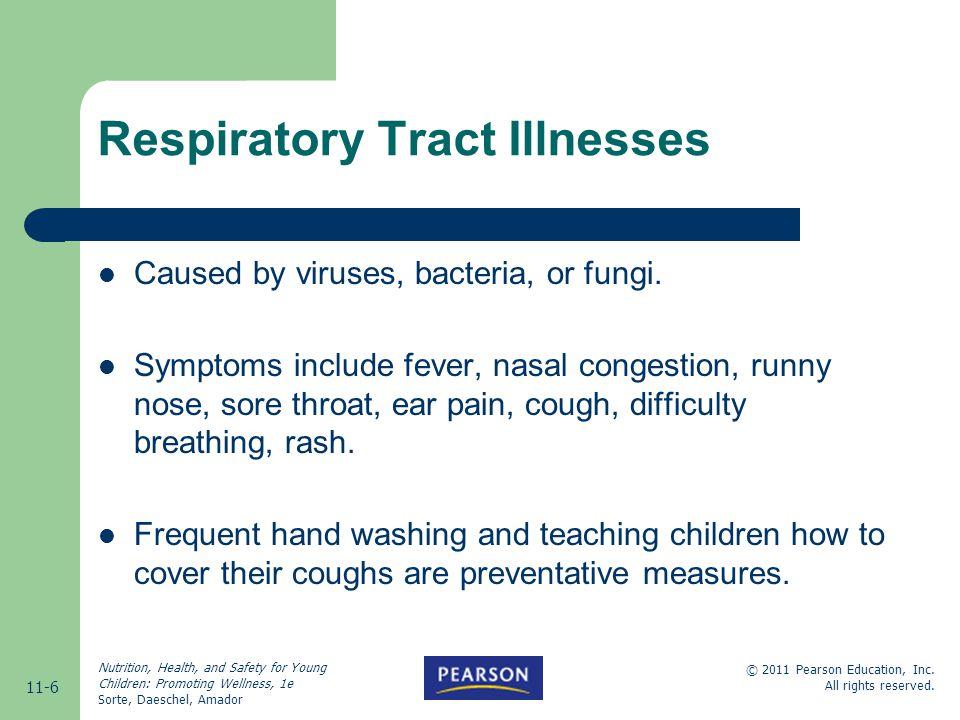 Respiratory Tract Illnesses