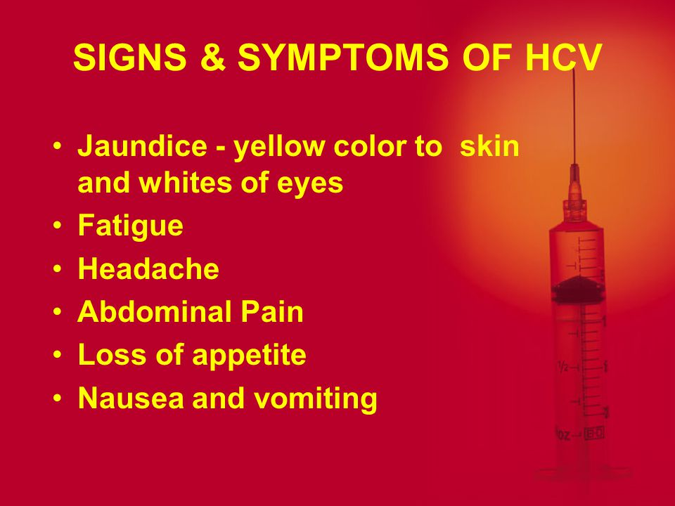 SIGNS & SYMPTOMS OF HCV Jaundice - yellow color to skin and whites of eyes. Fatigue. Headache. Abdominal Pain.