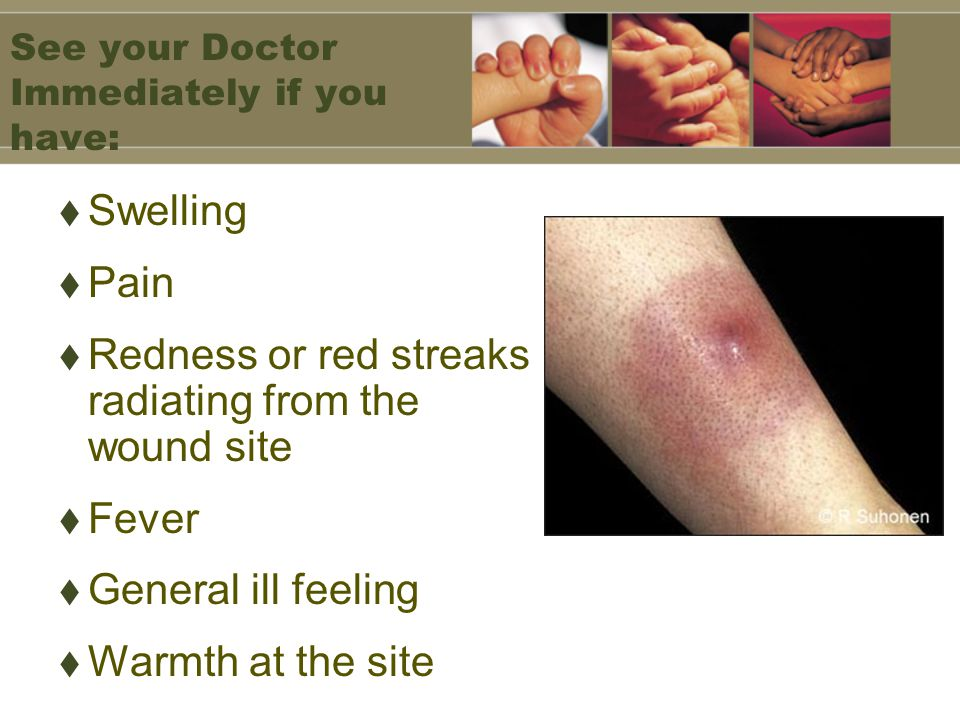 See your Doctor Immediately if you have: