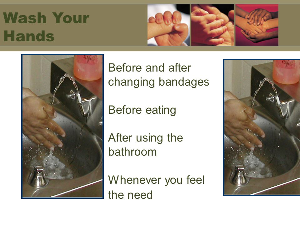 Wash Your Hands Before and after changing bandages Before eating After using the bathroom Whenever you feel the need.
