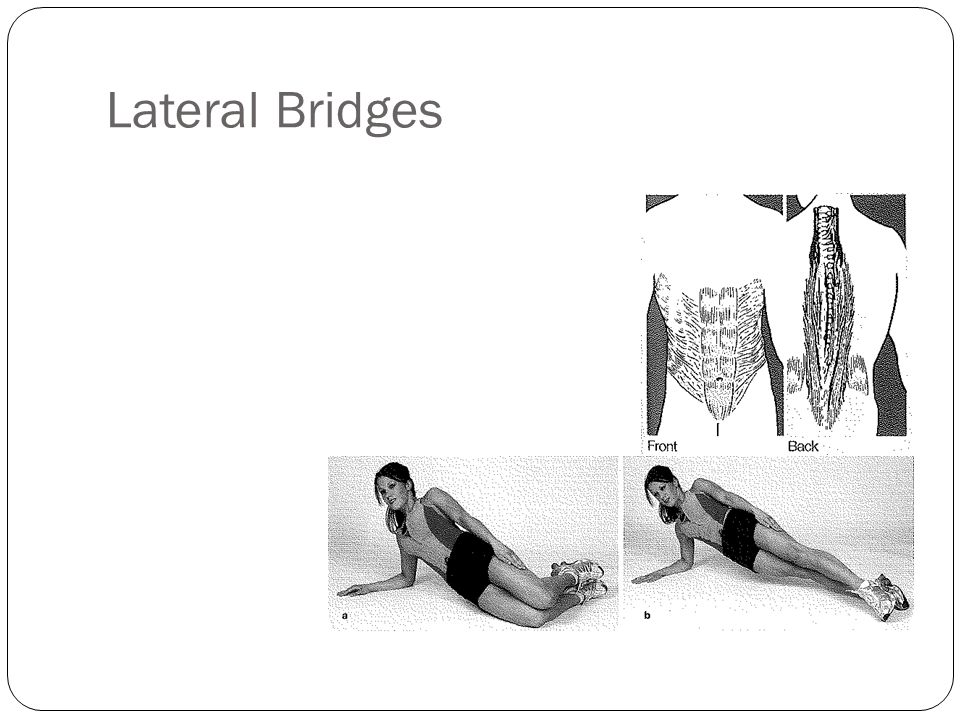 Lateral Bridges