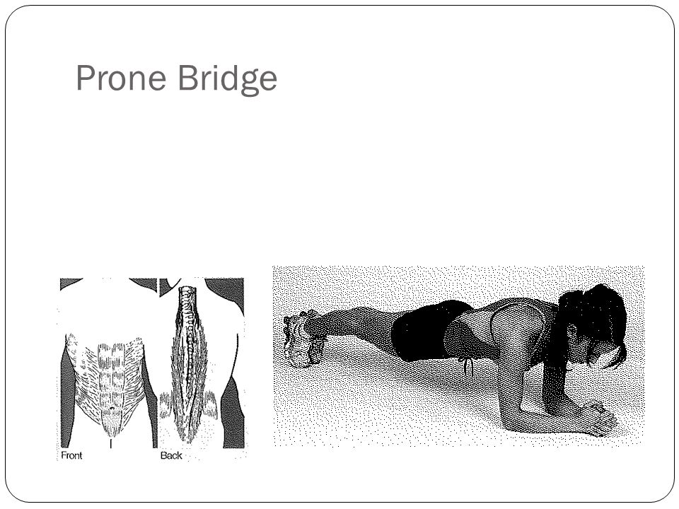 Prone Bridge
