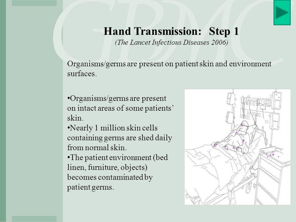 Hand Transmission: Step 1