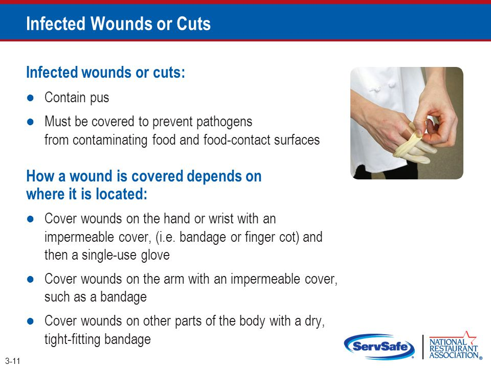 Infected Wounds or Cuts