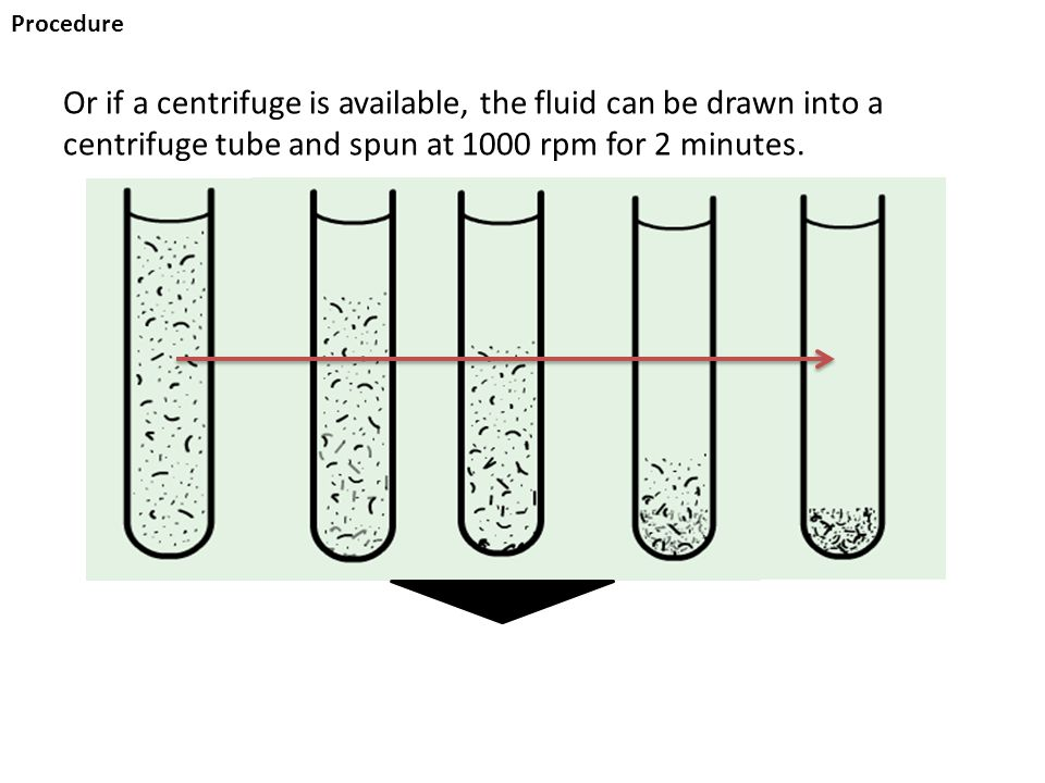 Procedure Or if a centrifuge is available, the fluid can be drawn into a centrifuge tube and spun at 1000 rpm for 2 minutes.