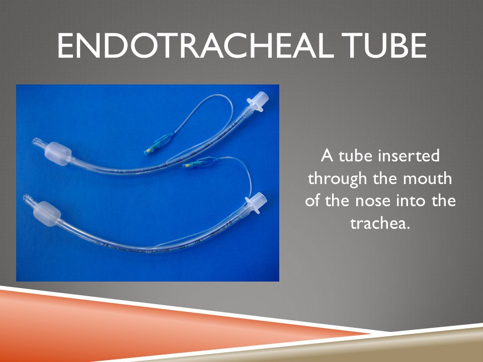 A tube inserted through the mouth of the nose into the trachea.