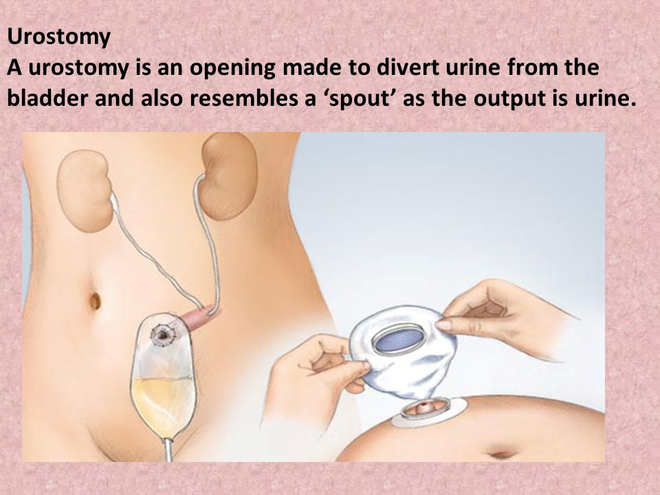 Urostomy A urostomy is an opening made to divert urine from the bladder and also resembles a 'spout' as the output is urine.