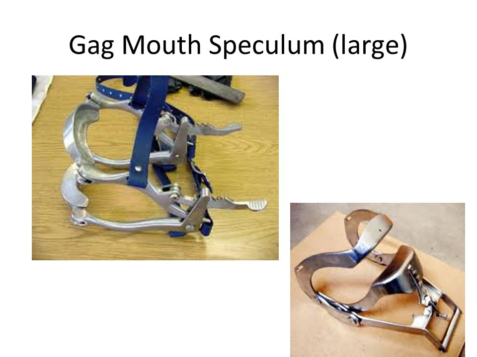 Gag Mouth Speculum (large)