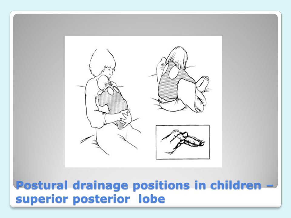 Postural drainage positions in children – superior posterior lobe