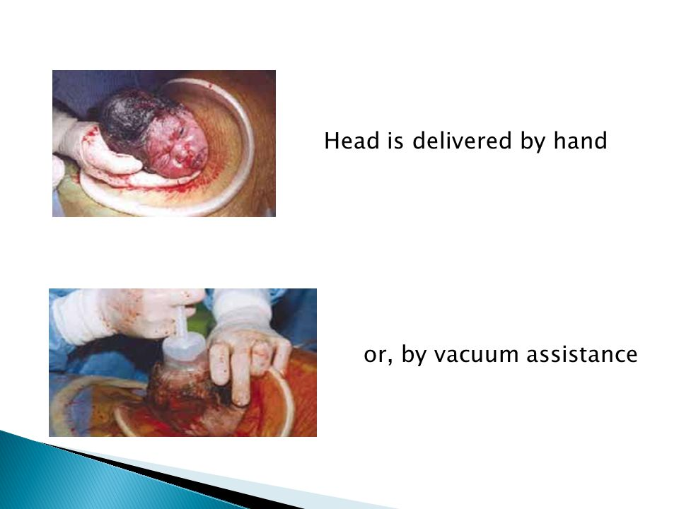 Head is delivered by hand
