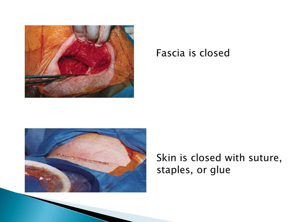 Fascia is closed Skin is closed with suture, staples, or glue