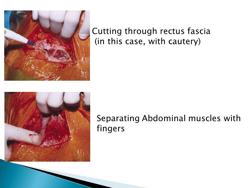 Cutting through rectus fascia