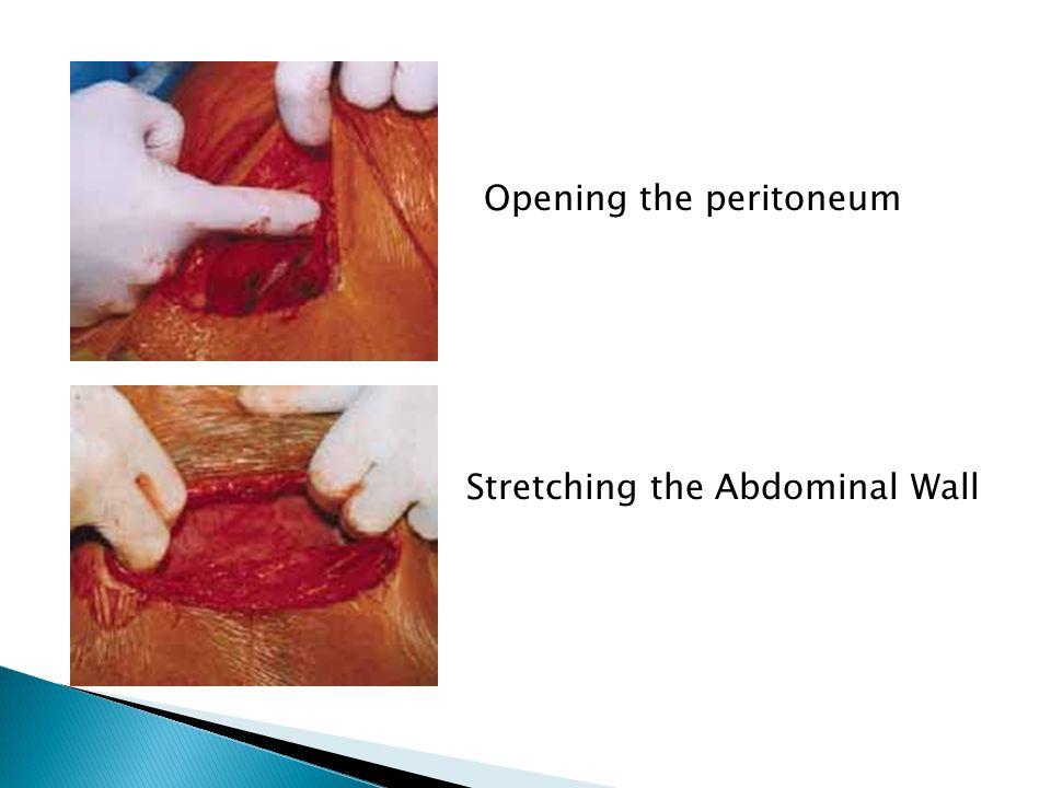 Opening the peritoneum