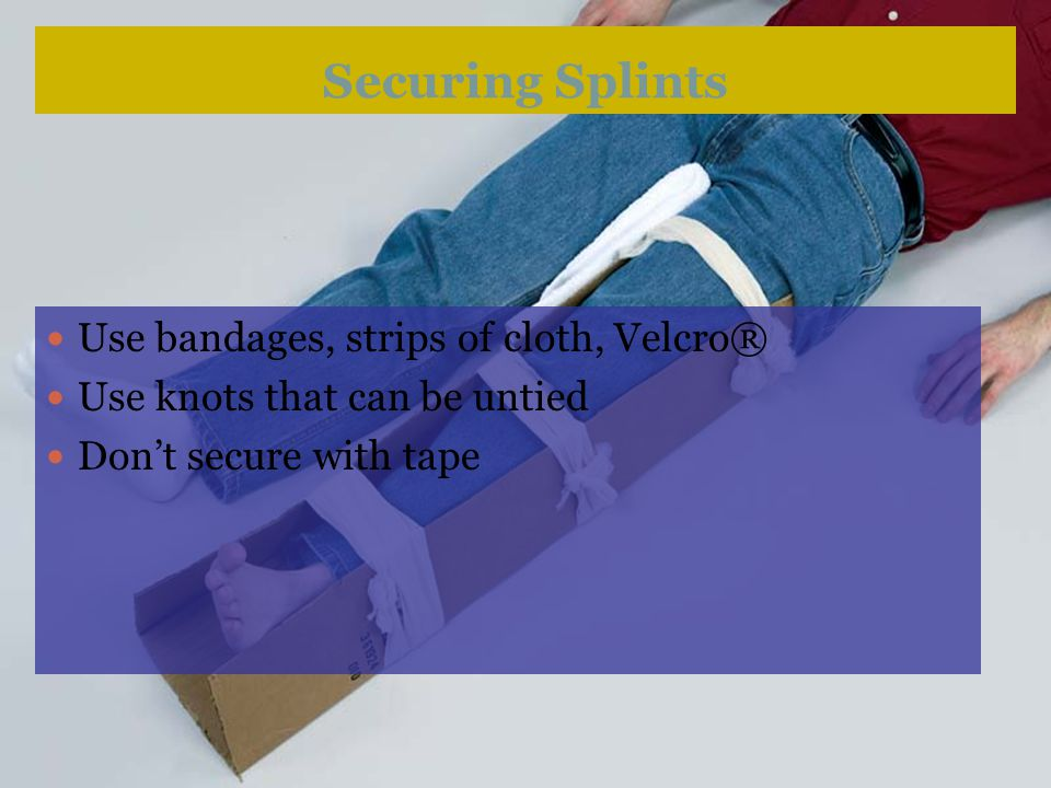 Securing Splints Use bandages, strips of cloth, Velcro®
