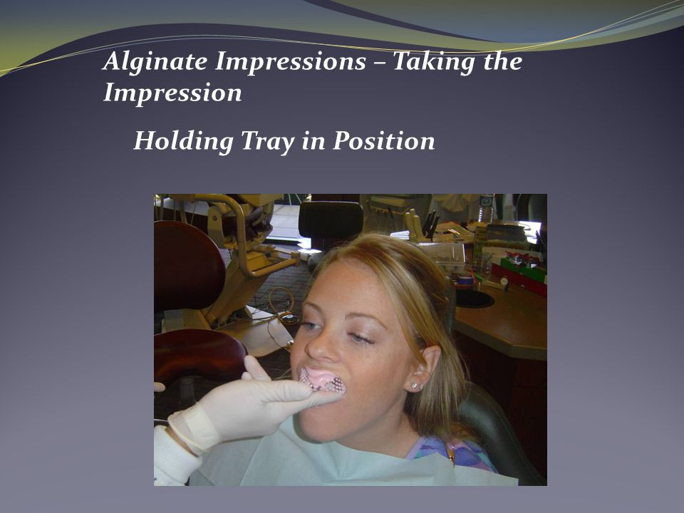 Alginate Impressions – Taking the Impression