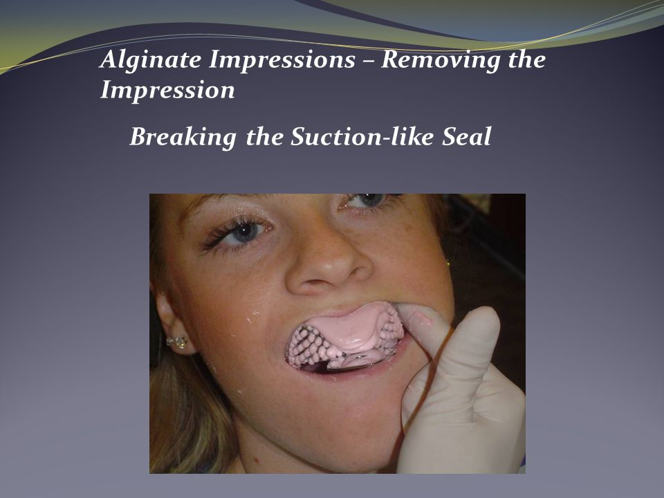 Alginate Impressions – Removing the Impression