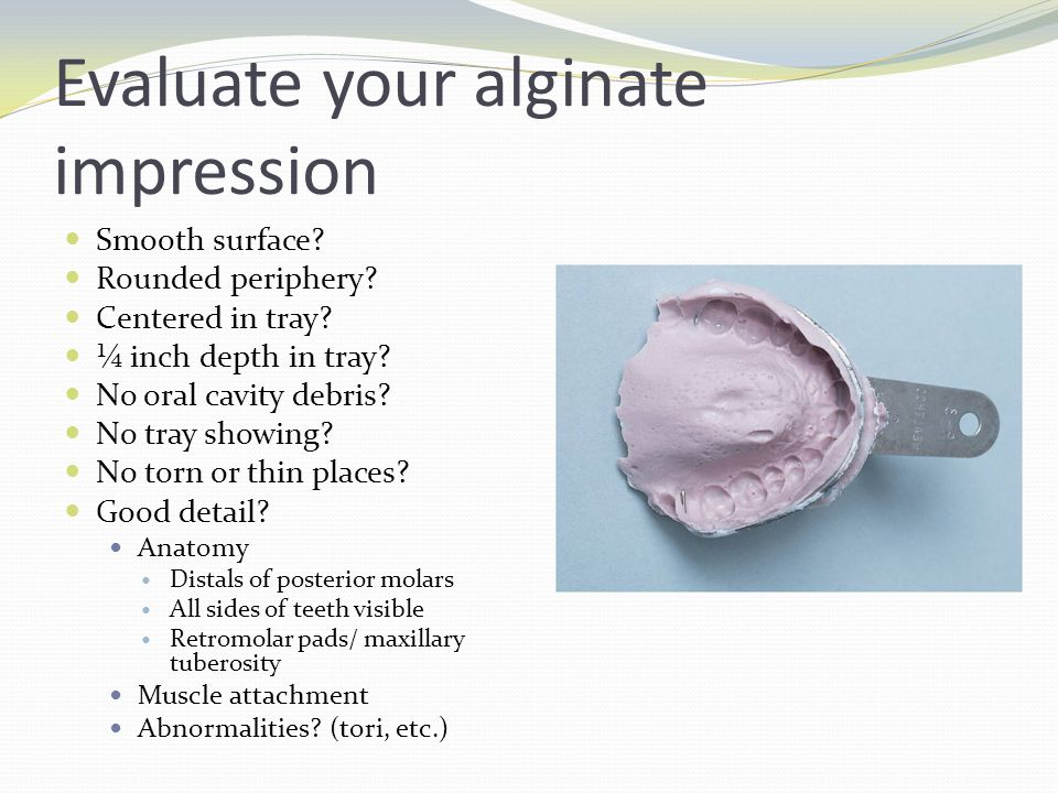 Evaluate your alginate impression