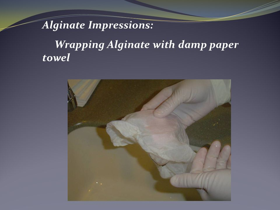 Alginate Impressions: