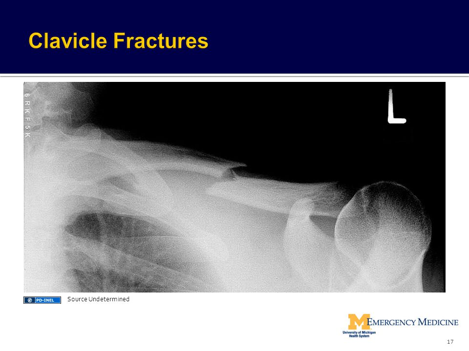 Clavicle Fractures Source Undetermined