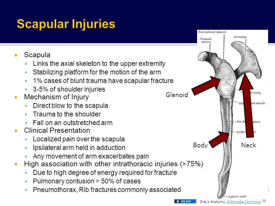 Scapular Injuries Scapula Mechanism of Injury Clinical Presentation