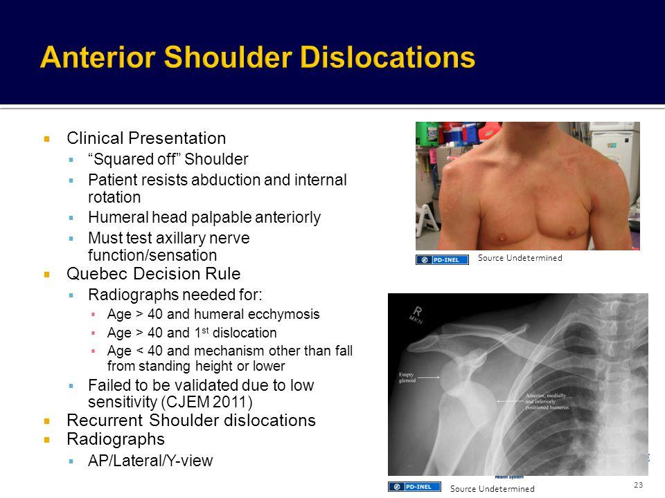 Anterior Shoulder Dislocations