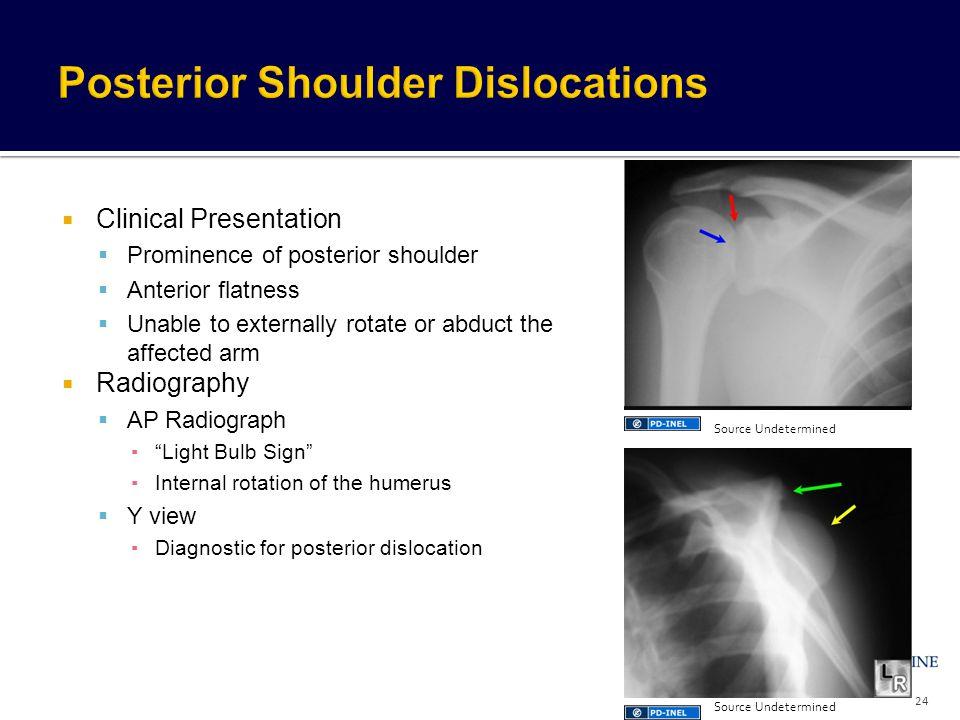Posterior Shoulder Dislocations