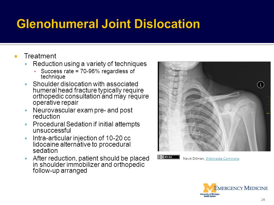 Glenohumeral Joint Dislocation