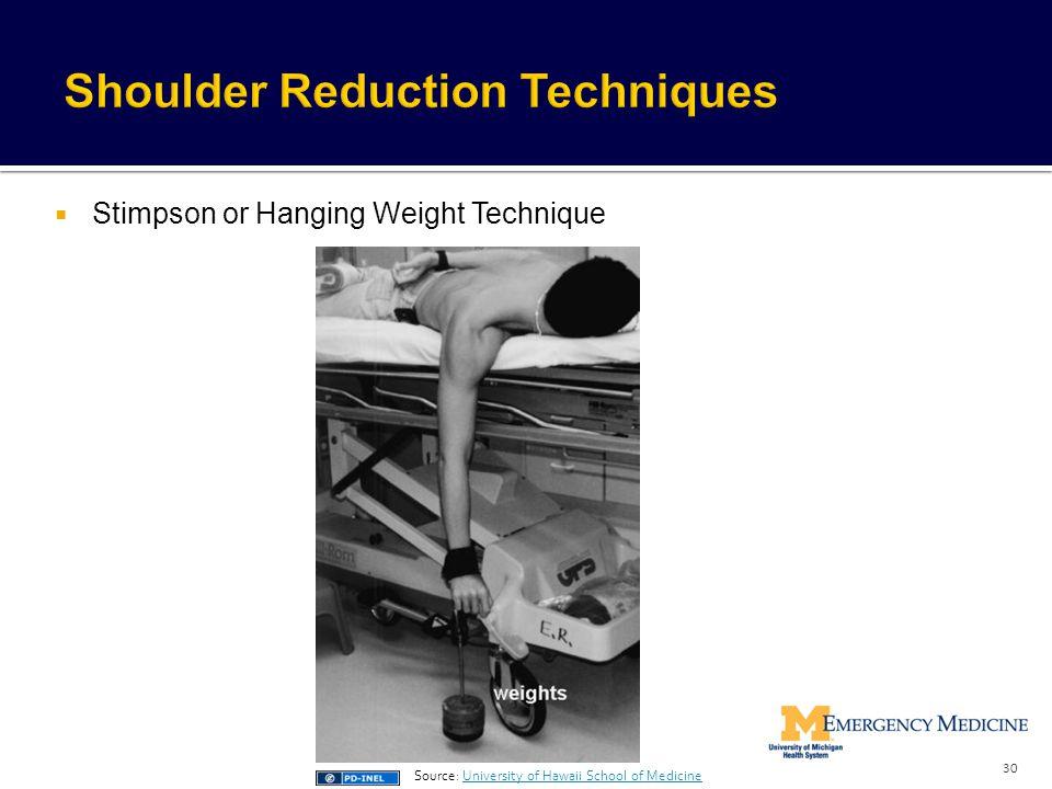 Shoulder Reduction Techniques