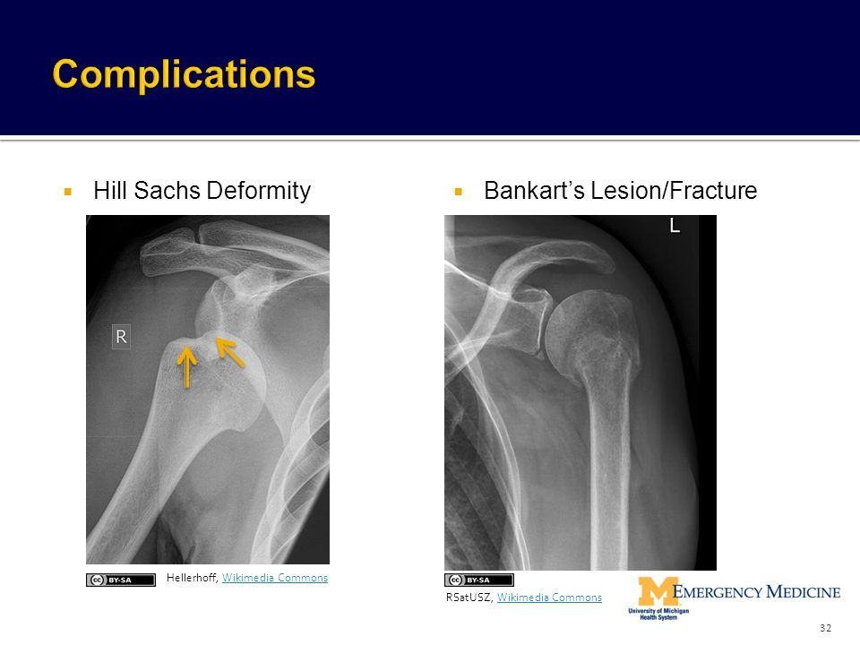 Complications Hill Sachs Deformity Bankart's Lesion/Fracture